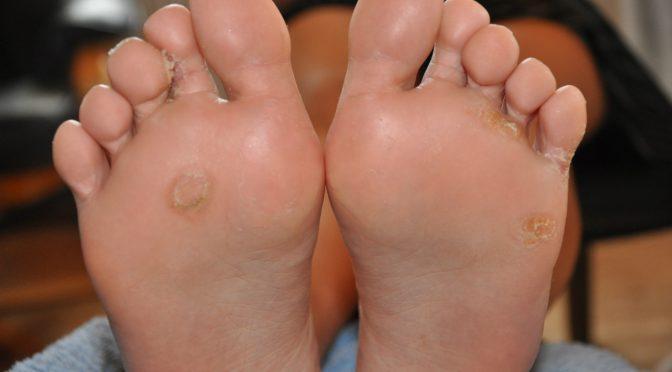 smitter fodvorter under behandling